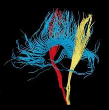 3D rekonstrukce komisurálních traktů kalózního tělesa (modrá) a obou kortikospinálních drah (žlutá, červená).