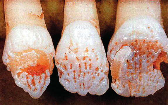 Hypomineralizace skloviny (amelogenesis imperfecta). (dle: Cawson RA, Odell EW, Porter S. Cawson´s Essentials of Oral Pathology and Oral Medicine. Churchill Livingstone, 2008. ISBN 0 443 071055). Fig. 1. These teeth an affected female show the typical vertical ridged pattern of normal and abnormal enamel as a result of lyonisation.