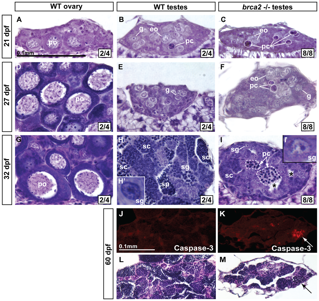 Developing gonads of <i>brca2</i> mutants lack perinucleolar oocytes and develop testes that contain pyknotic and apoptotic cells.