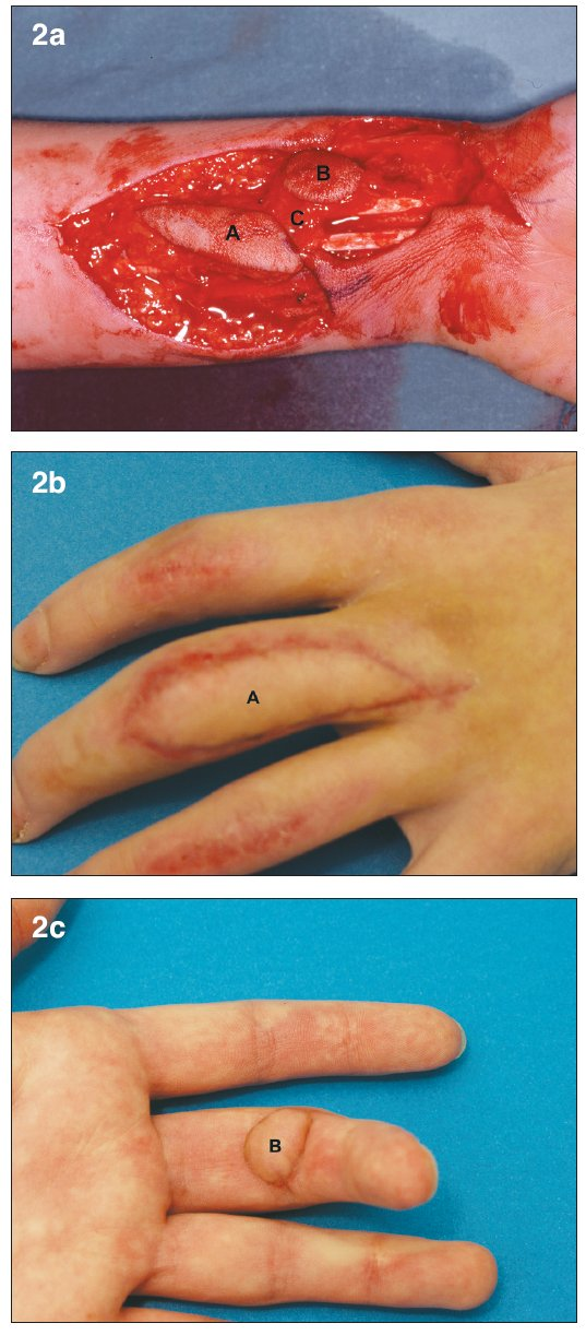 a. Bilobed arterialized venous flap. Flap harvested on the distal