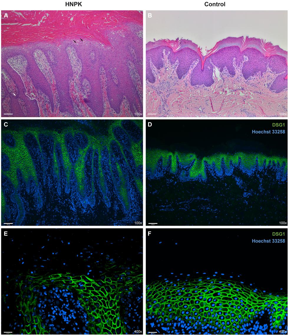 Nasal planum tissue of an HNPK affected and a non-affected Labrador Retriever.