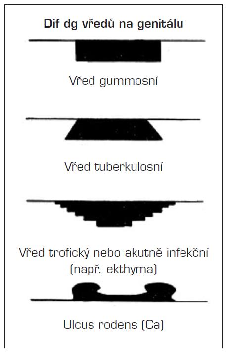 Schéma vzhledu vybraných vředů (upraveno dle Jiráska a Šťávy) Štáva Z., Jirásek L. Dermatovenerologie. Avicenum, 1982