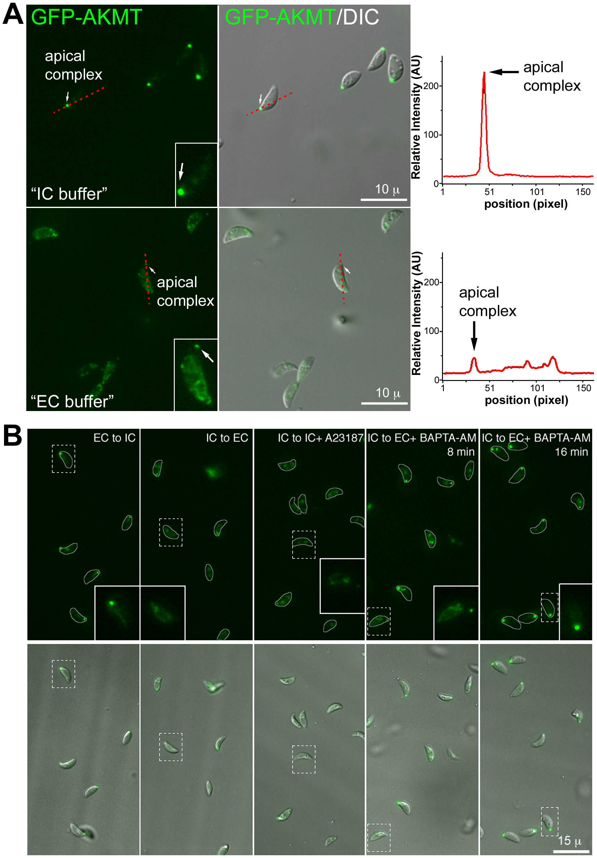 The localization of AKMT is affected by the extracellular and intracellular ionic composition.