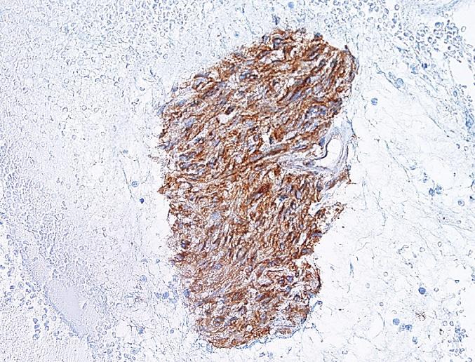GIST – imunocytochemický průkaz CD117.