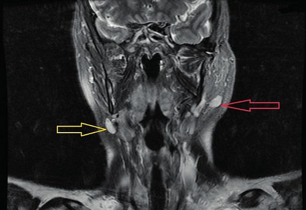 MRI zobrazení hlavy a krku v T2 váženém obrazu. Frontální rovina – červená šipka zobrazuje ovoidní útvar v L příušní slinné žláze, solidní struktury vysokého signálu. Žlutá šipka označuje uzlinu.
