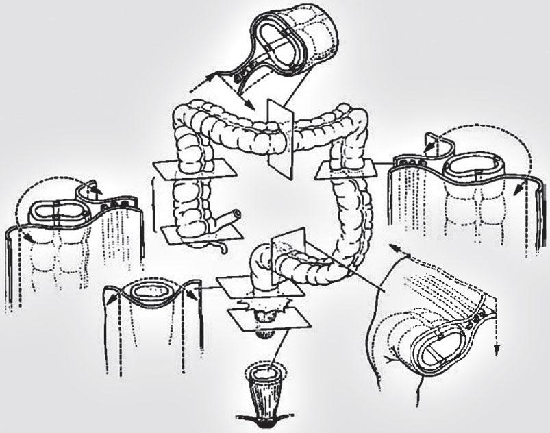 Idealizovaný náčrt vztahu tlustého střeva a peritonea. Podle [2].