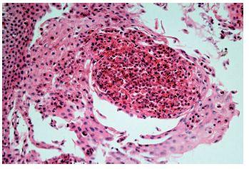 Eozinofilní ezofagitida. Eozinofilní absces v dlaždicovém epitelu (HE, 400x)