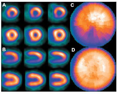 Porucha prokrvení na spodní stěně myokardu způsobená interferencí břišních orgánů – zobrazeno na vybraných tomografických řezech (horní řada A – SA a B – VLA) a polární mapě (C). Při snímání v poloze na břiše se perfuzní defekt již nezobrazuje – zobrazeno na vybraných tomografických řezech (dolní řada A – SA a B – VLA) a polární mapě (D).