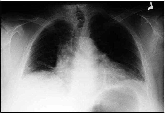 Nemocná 1 – rtg snímek plic PA. Výše uložené obě poloviny bránice, ploténková atelektáza nad pravou polovinou bránice.