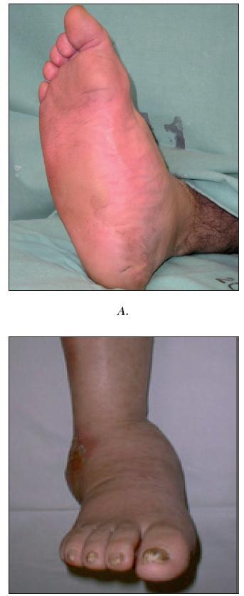 Charcotova osteoarthropatie A. Aktivní stádium B. Pokročilé stadium s postižením talokrurálního kloubu