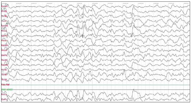 "Obr. 4. Pacientka 4 – na EEG nález ""extreme delta brushes"" vln.