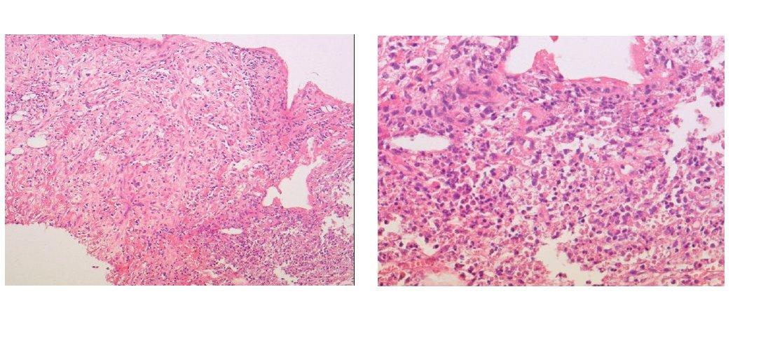 a) Mikroskopický obraz punkční biopsie ložiska jater s úsekem vaziva a v okraji s nekrózou a zánětem. Barvení HE, zvětšení objektiv 10x. b) Mikroskopický obraz punkční biopsie ložiska jater – detail zánětlivé celulizace z obrázku 3a. Barvení HE, zvětšení objektiv 40x.