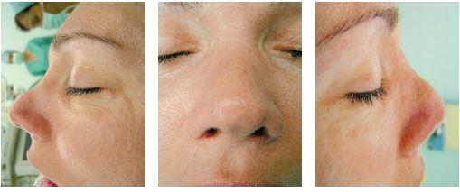 Pacientka po operácii nosa pri ktorej sa špička rotovala nahor a skrátili sa alárne chrupky. Nos je skrátený, s profilu je vidno miernu zobákovitú deformitu.