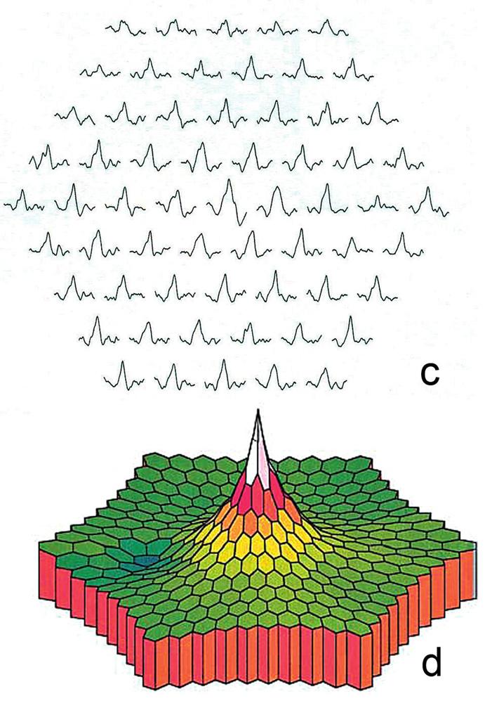 Multifokální ERG a) s poklesem amplitud parafoveolárně a b) na trojrozměrném obraze, pro srovnání normální nález c) místních odpovědí i d) trojrozměrného obrazu s maximem v oblasti místa nejostřejšího vidění a směrem do periferie postupně klesající aktivitou