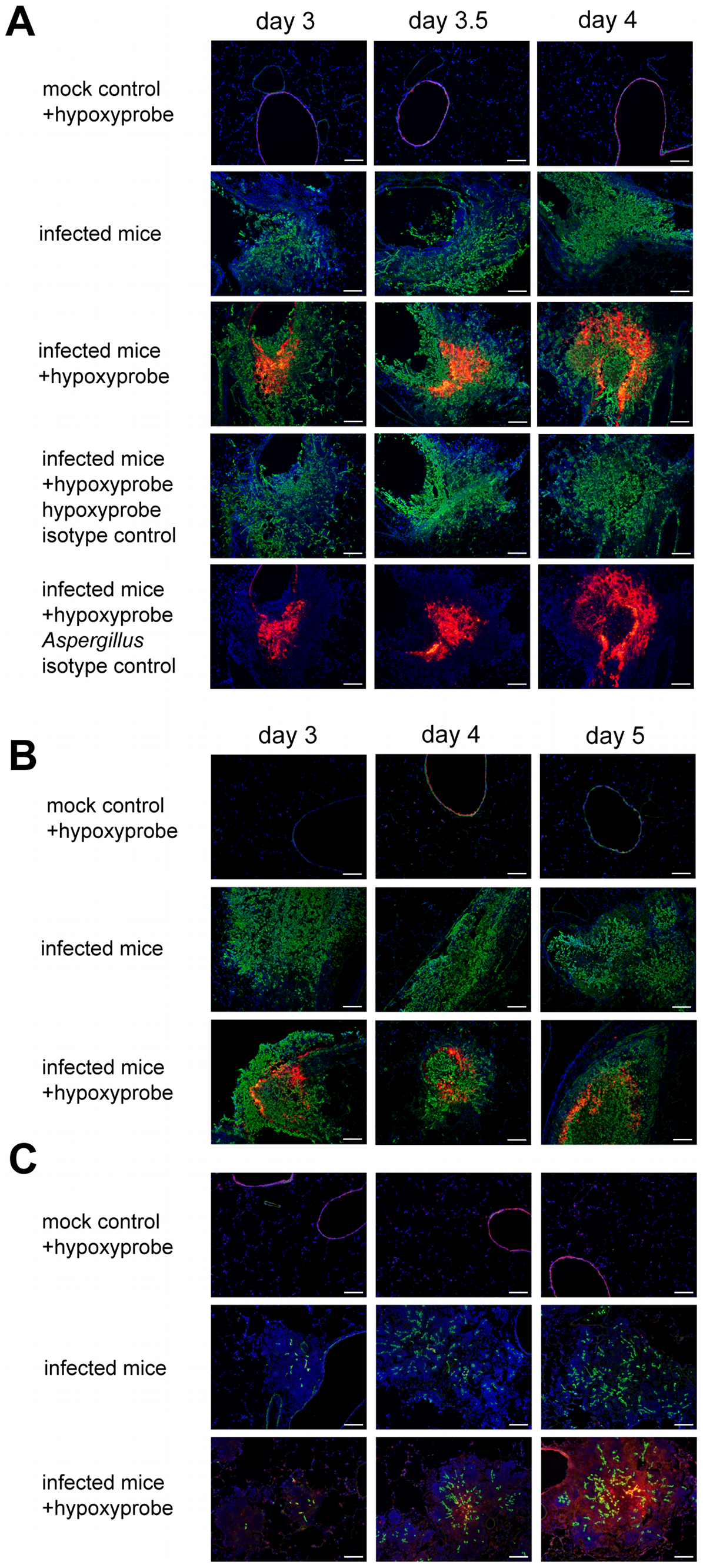 Identification of hypoxic microenvironments at the site of <i>A. fumigatus</i> infections in murine lungs.