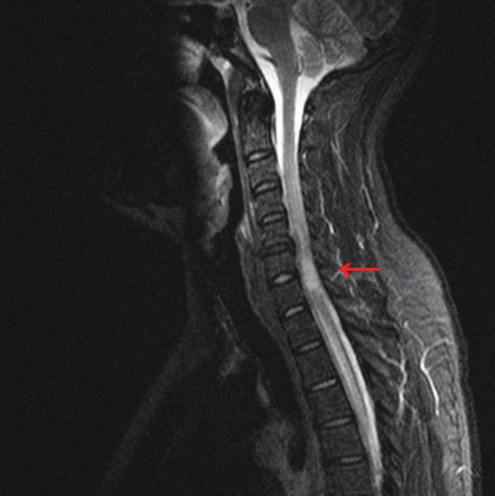 MRI krčnej miechy (STIR, sagitálny rez) s rozsiahlym intramedulárnym hyperintenzívnym ložiskom.