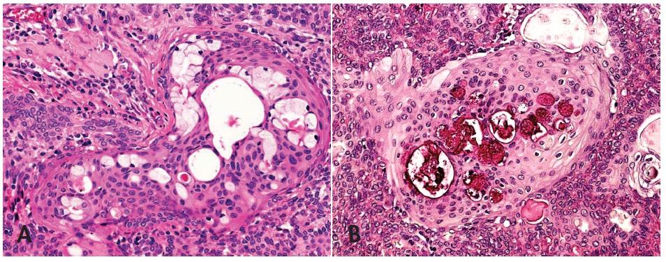 Skvamo-mucinózní metaplázie v pleomorfním adenomu napodobující mukoepidermoidní karcinom low grade (A), HE, 400x. Pohárkové buňky v barvení mucikarminem (B), 400x.