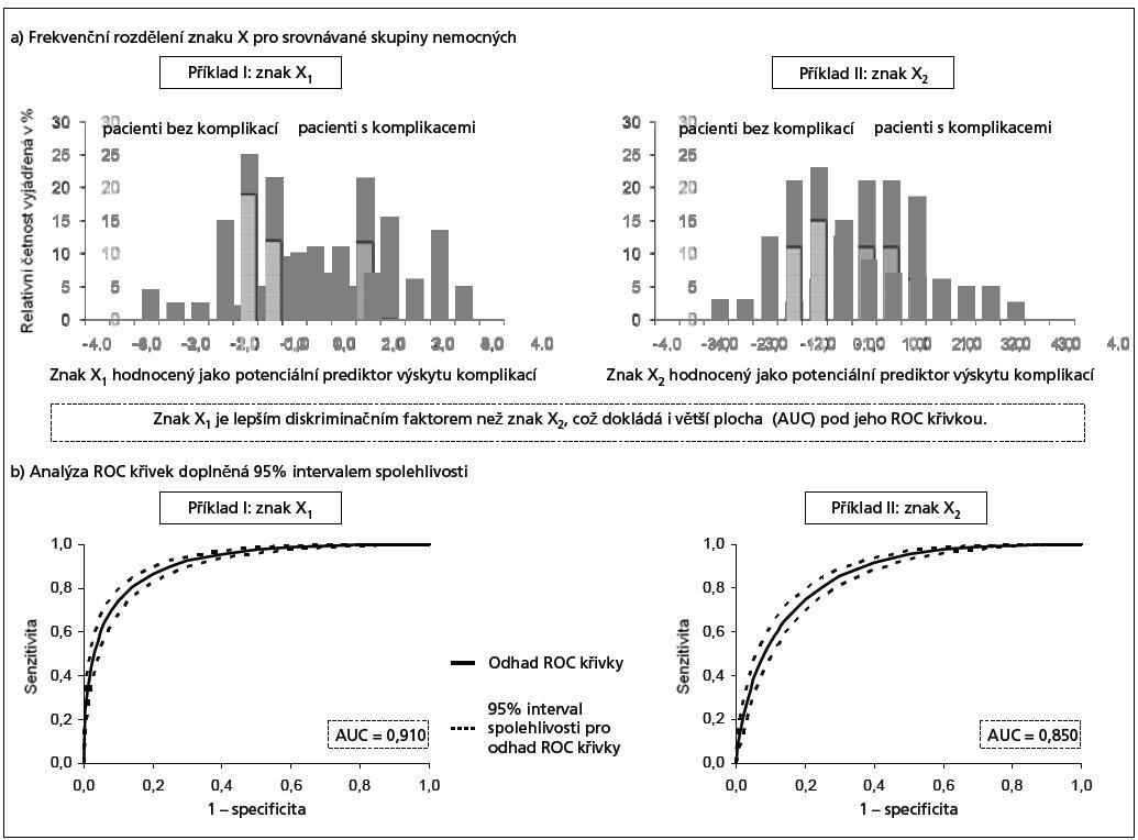 Ukázka výstupů analýzy ROC dvou znaků, X1 a X2, diagnosticky odlišujících pacienty s a bez komplikací.