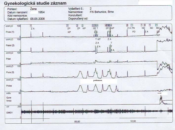 Záznam UD vyšetření pravého močového měchýře.