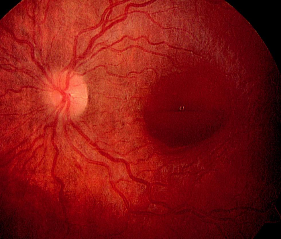 Leukémie u 10leté dívky, která se projevila preretinálním krvácením v oblasti makuly levého oka