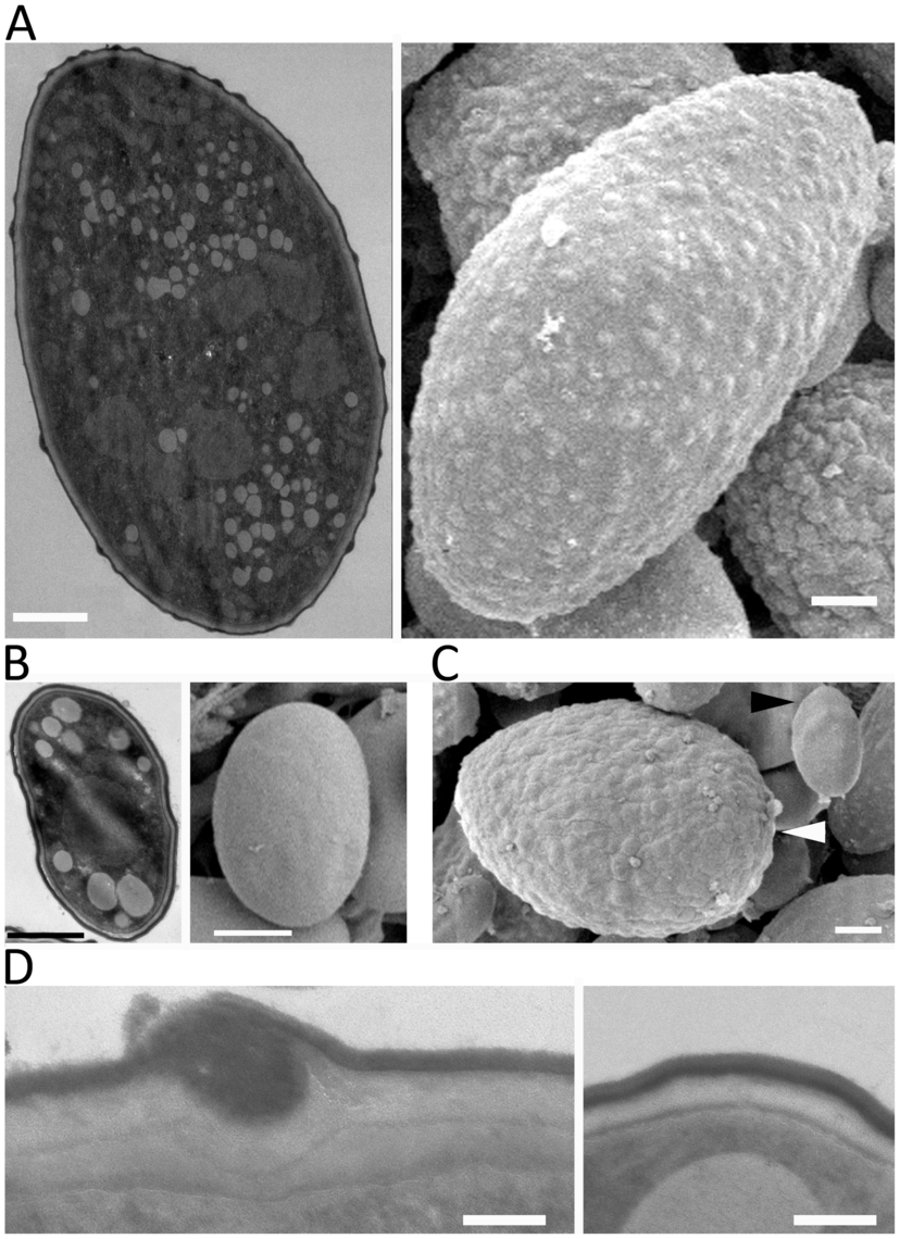 SEM and TEM images of large and small spores.