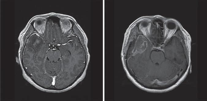MR obraz pacienta s glioblastoma multiforme.