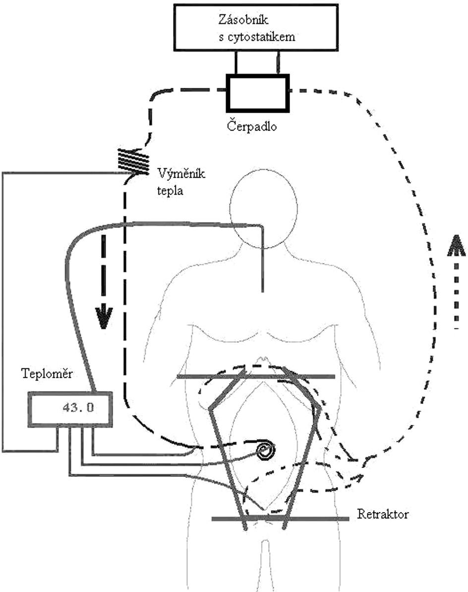 Schéma hypertermické intraoperační terapie, upraveno podle [10]