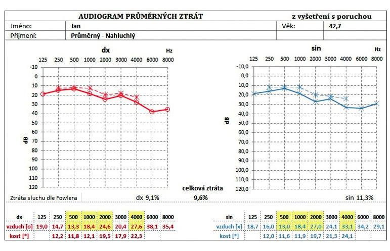 Audiogram průměrných ztrát na jednotlivých frekvencích.