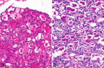 Obr. 1a, 1b Histologická struktura sekrečního karcinomu mammárního typu (mikroskopické zvětšení 400x) (zobrazení s laskavým svolením prof. Skálové).