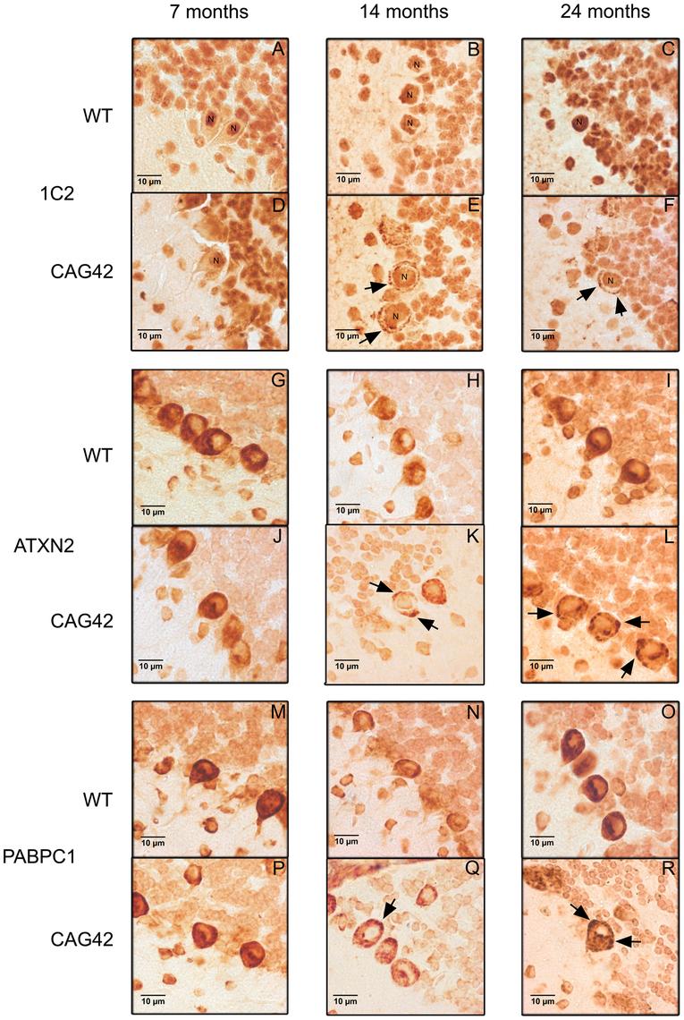 Immunohistochemistry of cerebellar Purkinje cells.
