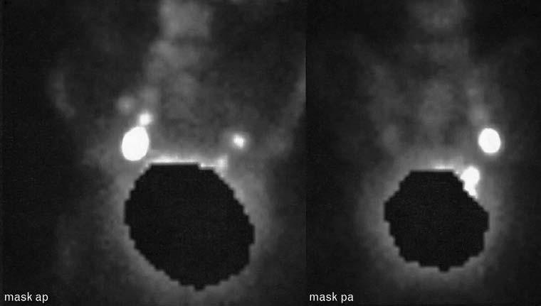 Zobrazení pánevních sentinelových uzlin gamakamerou, 3 hod po aplikaci radioizotopu.