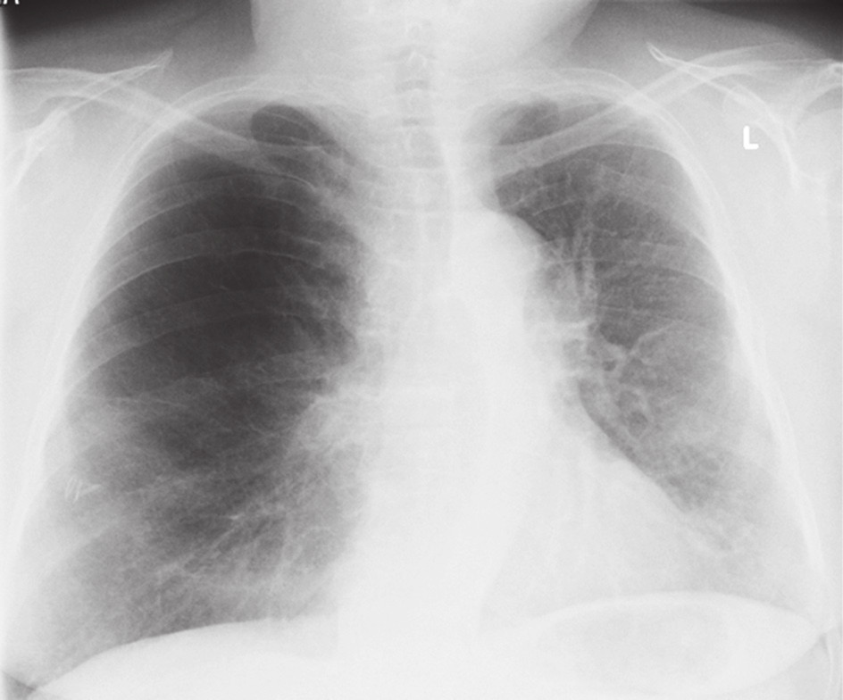 RTG po primotransplantaci