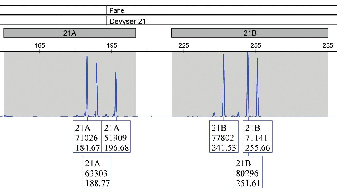 Vzorka plodovej vody (vzorka 9), jasne potvrdená trizómia 21 u plodu