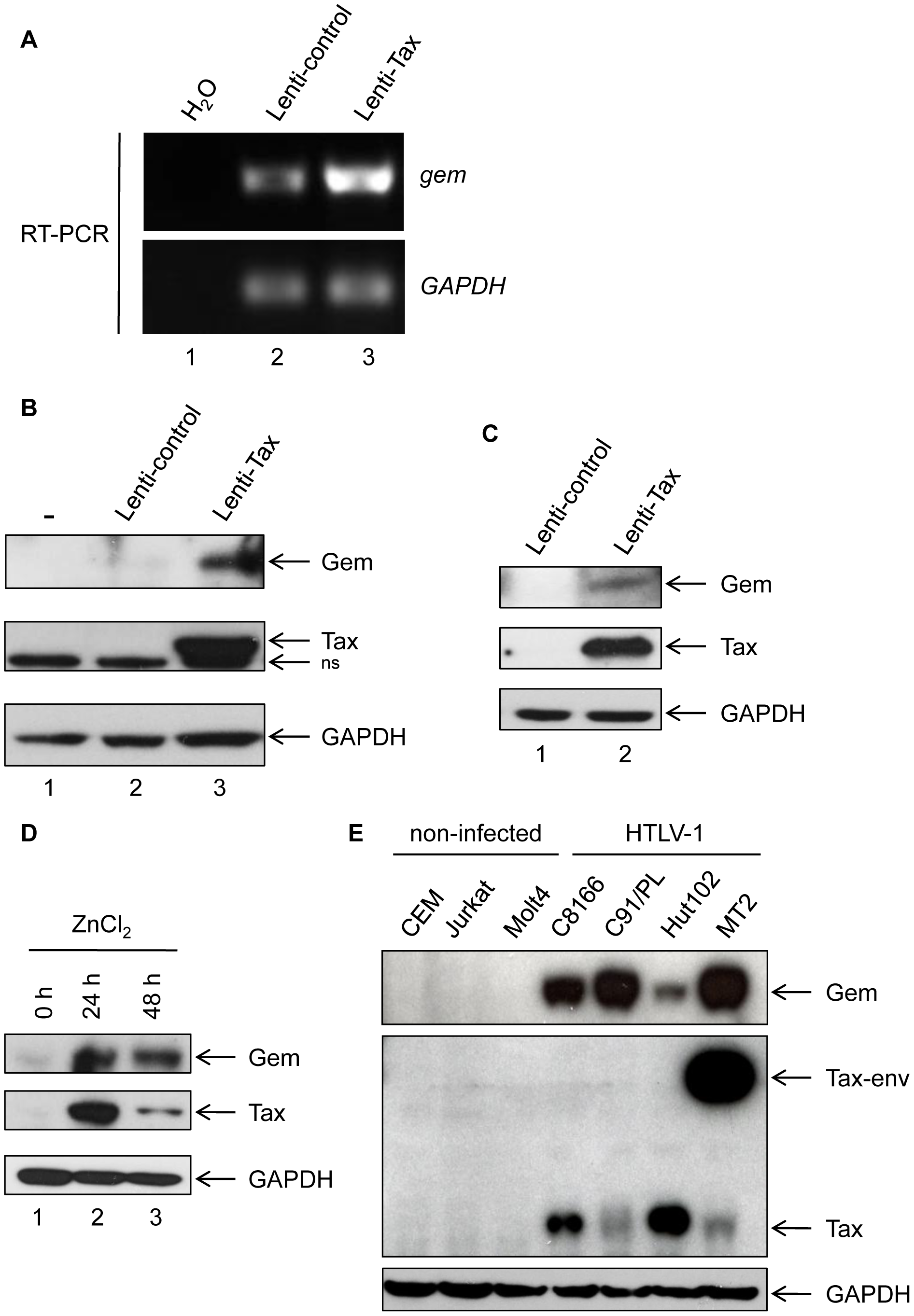 Gem is overexpressed in T- and non-T-Tax-expressing cells as well as in HTLV-1 infected cells.