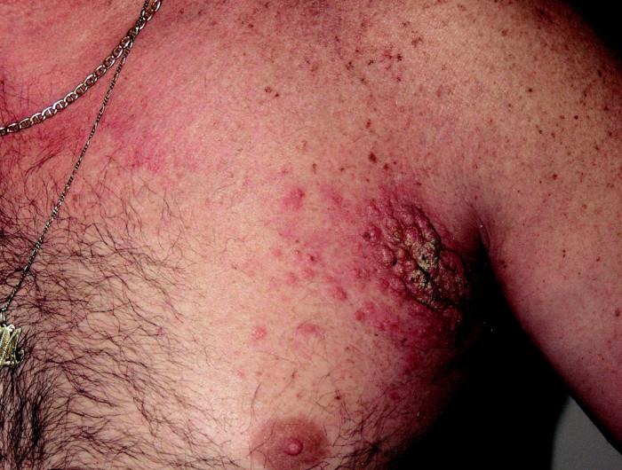 Metastázy karcinomu trávicího ústrojí.