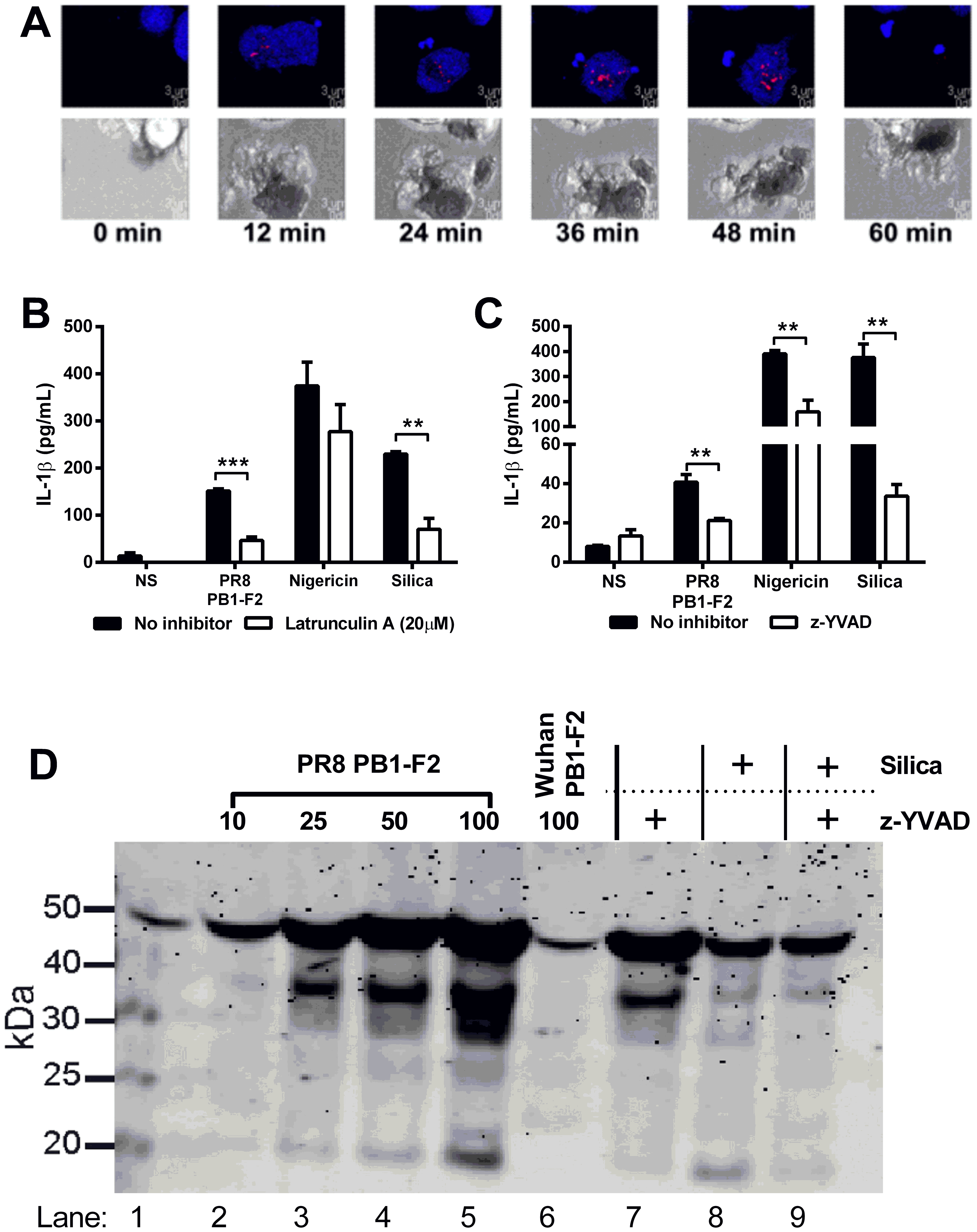PR8 PB1-F2-mediated inflammation is NLRP3-, Caspase 1- and phagocytosis- dependent and induces ASC speck formation in macrophages.
