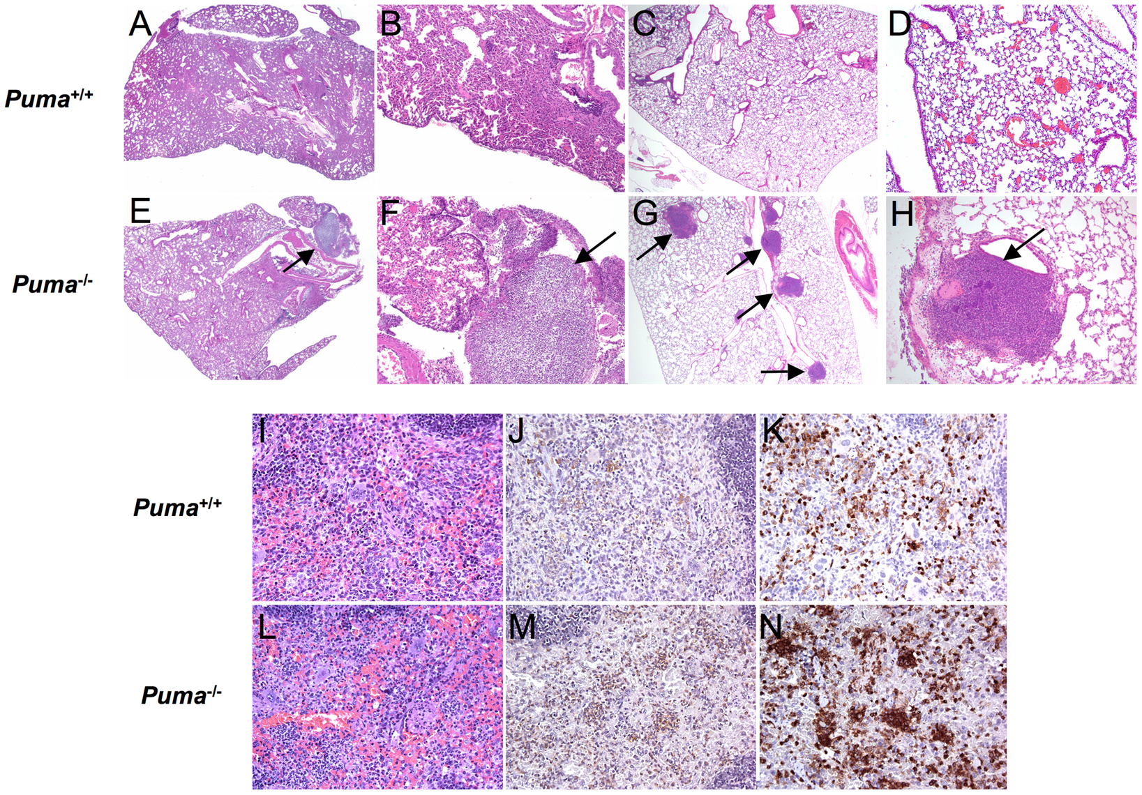 Histopathology of bacterial-infected organs.