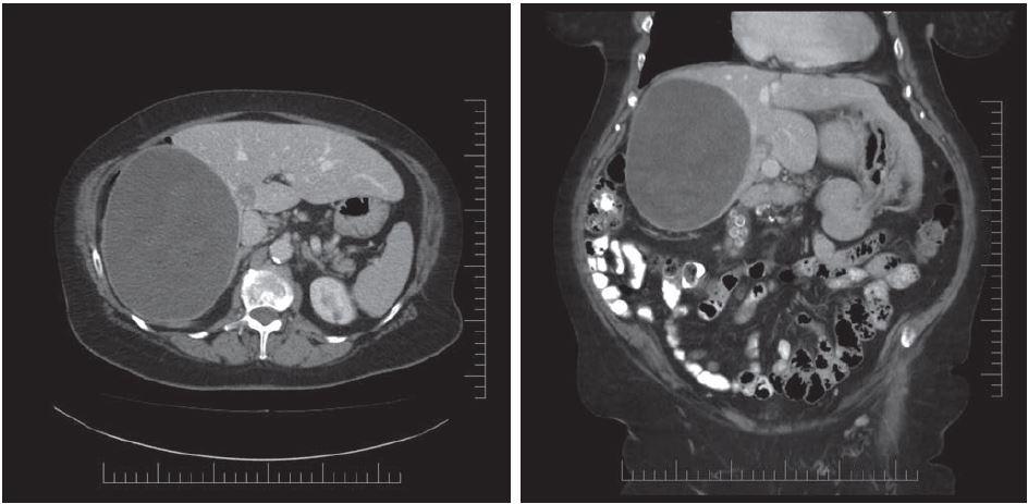 Iniciální CT, se kterým byla pacientka odeslána do MOÚ s podezřením na sarkom.