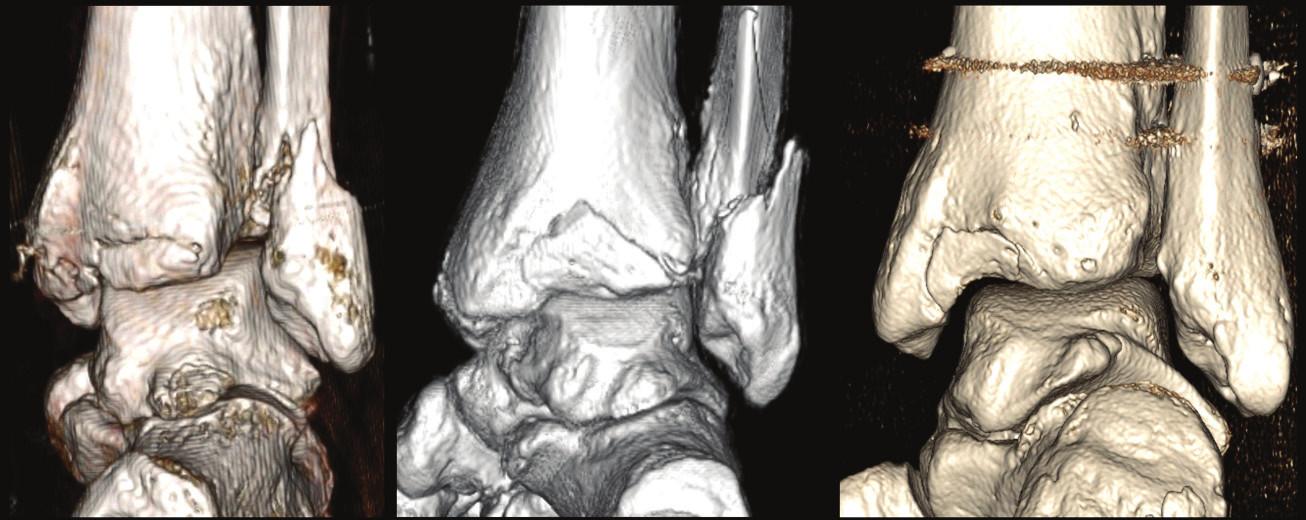 Variabilita typu 1 (extraincisurální fragment) na 3D CT rekonstrukcích a – fragment je tvořen pouze tuberculum posterius tibiae, b – fragment je tvořen tuberculum posterius tibiae a přilehlou částí zadní hrany tibie, c – fragment je tvořen mediální částí zadní hrany tibie a zasahuje do sulcus malleolaris. Fig. 11: Variability of type 1 (extraincisural fragment) on 3D CT reconstructions a – fragment is formed only by tuberculum posterius tibiae, b - fragment is formed by tuberculum posterius tibiae and the adjacent posterior tibial edge, c – fragment is formed by the medial part of posterior tibial edge with involvement of the malleolar groove.