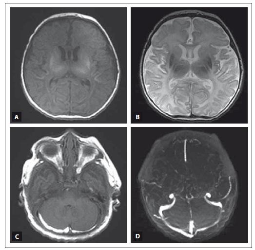 MR vyšetření mozku donošeného novorozence (dívka, gestační věk 41 + 0), postižení bazálních ganglií, thalamů a bílé hmoty mozkové v okcipitálních lalocích při HIE spolu s trombózou sinus transversus oboustranně. Fig. 3. MRI of a term-neonatal brain (girl, gestational age 41 + 0), pathological lesions in the basal ganglia and thalami, ischemic changes in the white matter of the occipital lobes in a neonate with HIE and trombosis of the both sinus transversus.