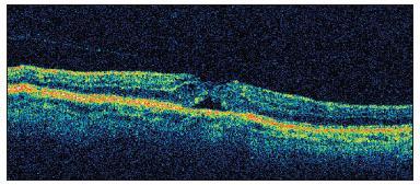 OCT nález u pacienta č.1 nasledujúci deň po operácii katarakty so zobrazením priblíženia okrajov neurosenzorickej sietnice a pravdepodobne s nakopením glie na vnútornom povrchu sietnice, stále je evidentná vitreoretinálna adhézia s trakciou