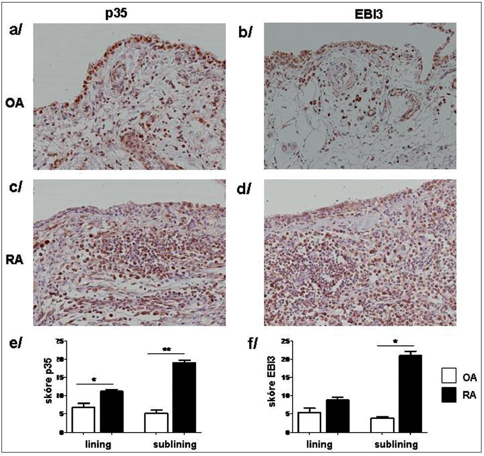 Imunonistochemické barvení p35 (a, c) a EBI3 (b, d) podjednotek IL-35 v OA (a, b) a RA (c, d) synoviální tkáni. Semikvantitativní hodnocení prokázalo vyšší expresi p35 (e) a EBI3 (f) jak v synoviální intimě (lining), tak v oblasti intersticia (sublining). Původní zvětšení x20. * p <0,05, ** p <0,01.