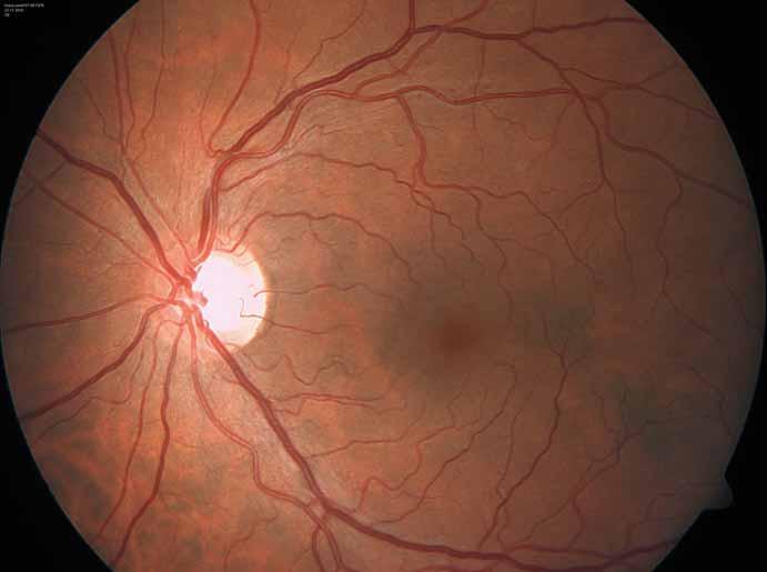 Charakteristicky vinuté retinální cévy u pacienta s Fabryho chorobou. Fig. 7. Characteristic tortuous retinal vessels in a Fabry disease patient.