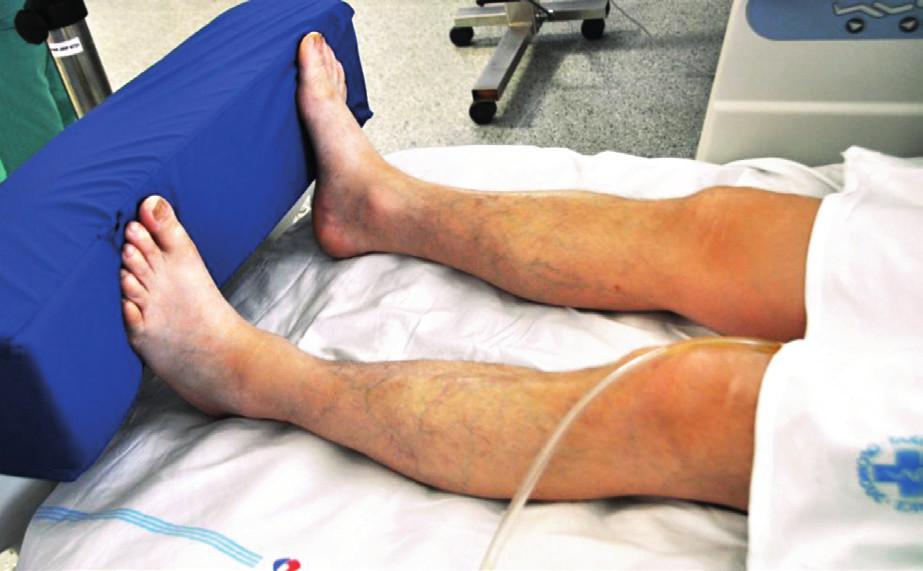 Pozice na zádech – zajištění dolních končetin s extenzí v koleni (kolenním kloubu)