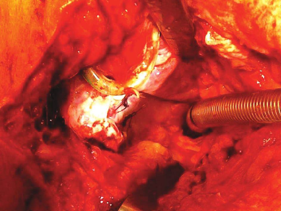 Kompletná dehiscencia tracheálnej anastomózy 5. deň po subglotickej resekcii spôsobená anaeróbnou infekciou a zvýšeným anastomotickým napätím Fig. 1. Complete dehiscence of tracheal anastomosis, Day 5 following subglottic resection, caused by anaerobic infection and increased tension in the anastomosis