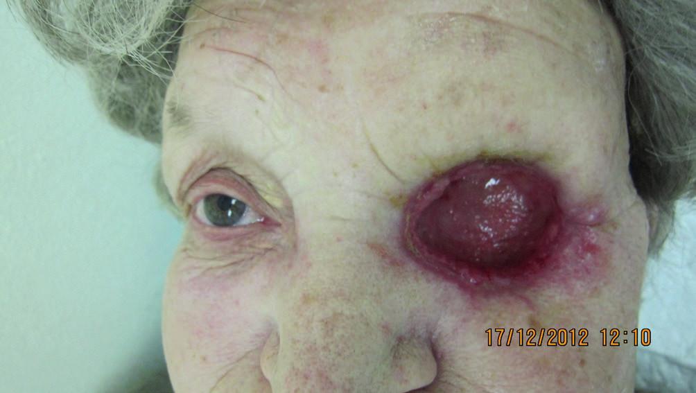 Hojenie dutiny očnice 3 týždne od exenterácie (12/2012)