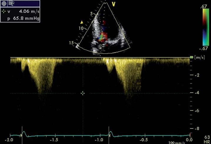 Zobrazení průtoku CW Dopplerem při obstrukci LVOT u nemocného hypertrofickou kardiomyopatií.