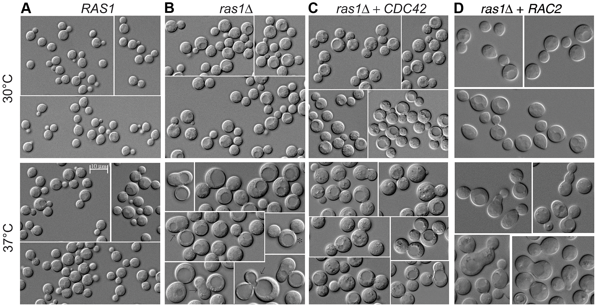 Yeast phase morphology of <i>C. neoformans</i> cells at 30 and 37°C after 4 hours.