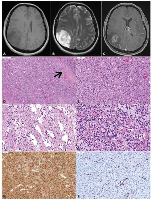 Glióm parietálneho laloka vpravo u 36 ročnej ženy s anamnézou niekoľo dní trvajúcich bolestí hlavy. MRI vyšetrenie ukázalo nepravidelné izo- až hypodenzné nádorové ložisko s rozsiahlym perifokálnym edémom, cystickou zložkou a prstencovitým vychytávaním kontrastnej látky (A, T1; B, T2; C, T1 s gadolíniom). Mikroskopicky sa jednalo o difúzne infiltrujúci gliový nádor s relatívne pravidelnou monotónnou hypercelularitou, ložiskami nekróz (šípka) a delikátnymi kapilárami (D). Nádorové bunky mali okrúhle jadrá a perinukleárne haló, obraz bol sugestívny pre diagnózu oligodendrogliómu (E). Ložiskovo boli zachytené mikrocysty, nádorové bunky v týchto častiach však mali skôr morfológiu astrocytómu (F,G). Imunohistochemicky bola dokázaná expresia IDH1 (H) a strata jadrovej expresie ATRX (J). Overexpreia p53 nebola prítomná. Nádor bol klasifikovaný ako glioblastóm, IDH-mutovaný, WHO grade IV. Klinicky sa jednalo o tzv. primárny glioblastóm (bez anamnézy resp. progresie z low-grade gliómu). Keďže väčšina IDH-mutovaných glioblastómov vzniká progresiou z low-grade IDH-mutovaných gliómov (tzv. sekundárny glioblastóm), je možné, IDH-mutované primárne glioblastómy vznikajú rýchlou progresiou klinicky nemého low-grade gliómu.