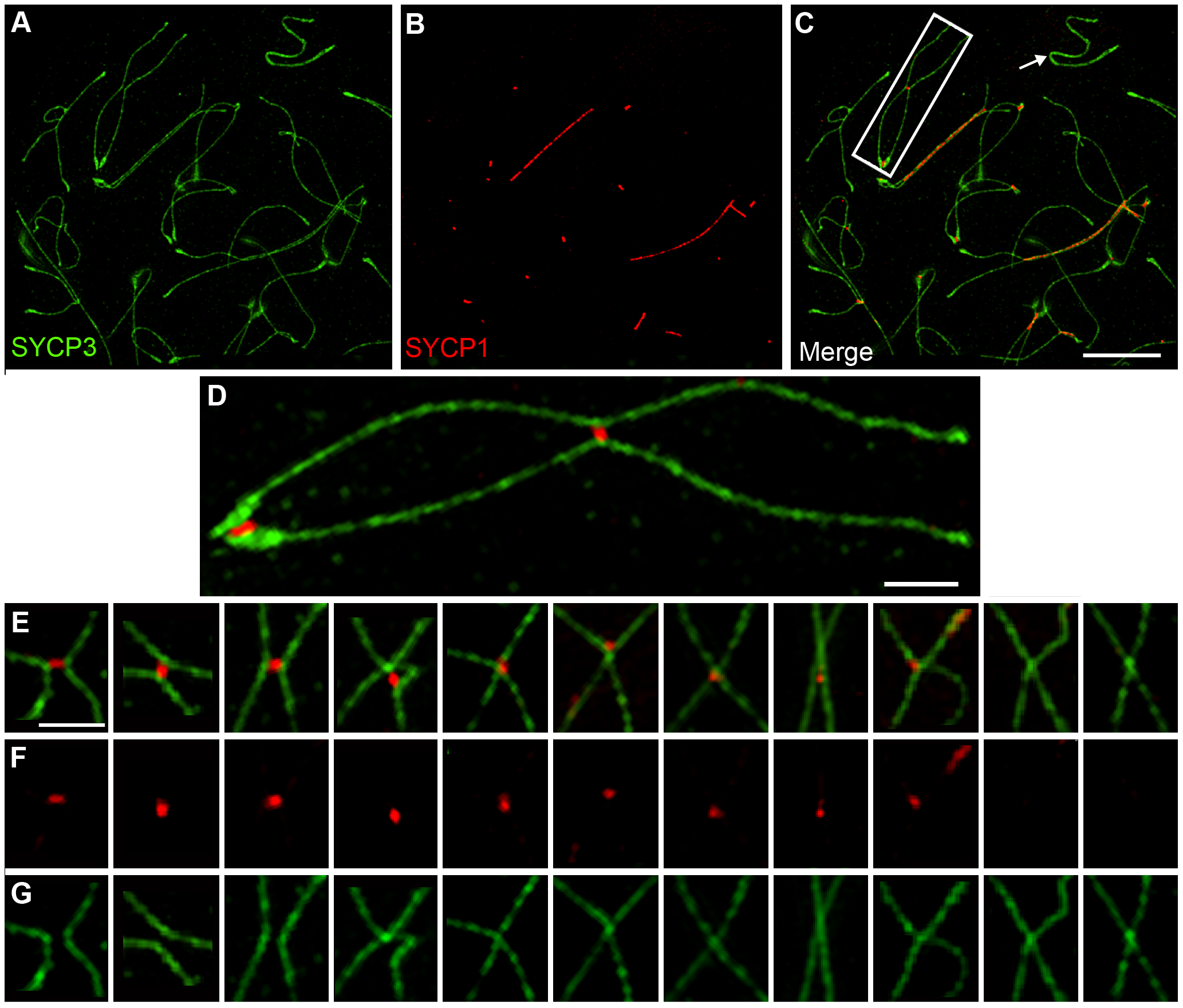Axis remodeling revealed by structured illumination microscopy of diplotene-stage spermatocytes.